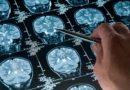Искусственный интеллект обнаруживает травмы головы | Esmynews